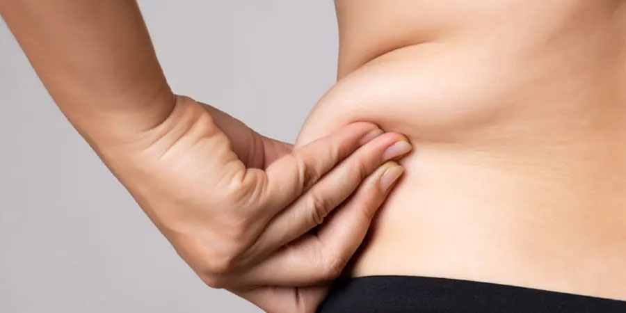 WHEN IS THE BEST TIME FOR LIPOSUCTION?