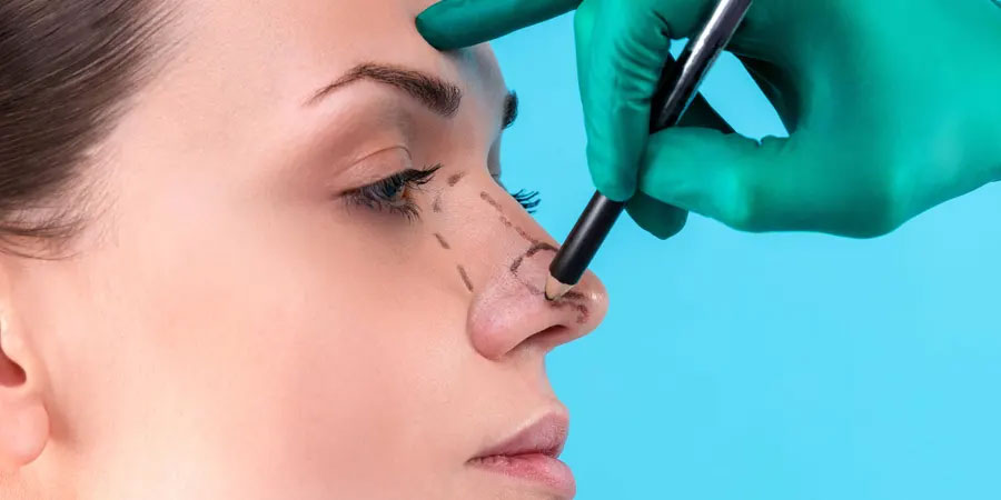 CHOOSE YOUR SURGEON WISELY WHEN YOU CONSIDERING ETHNIC RHINOPLASTY