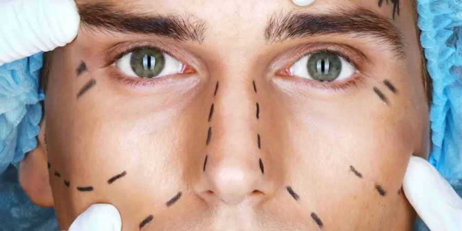 6 MOST POPULAR COSMETIC SURGERIES FOR MEN