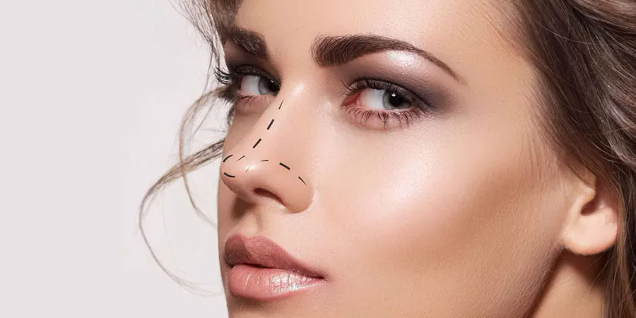 MYTHS ABOUT NOSE JOB THOSE YOU SHOULDN'T BELIEVE