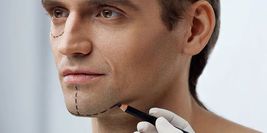 FIVE BENEFIT OF CHIN AUGMENTATION FOR MEN