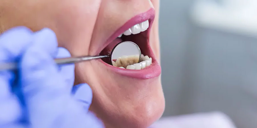 DENTAL PROBLEMS AFTER BARIATRIC SURGERY