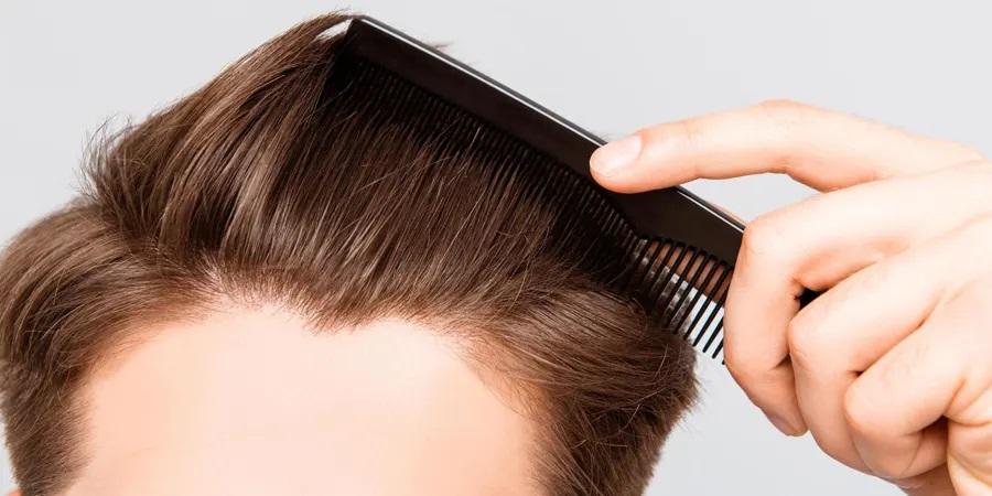 CELEBRITIES WHO HAD HAIR TRANSPLANTATION