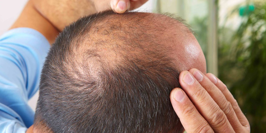 EFFECT OF ALCOHOL ON HAIR