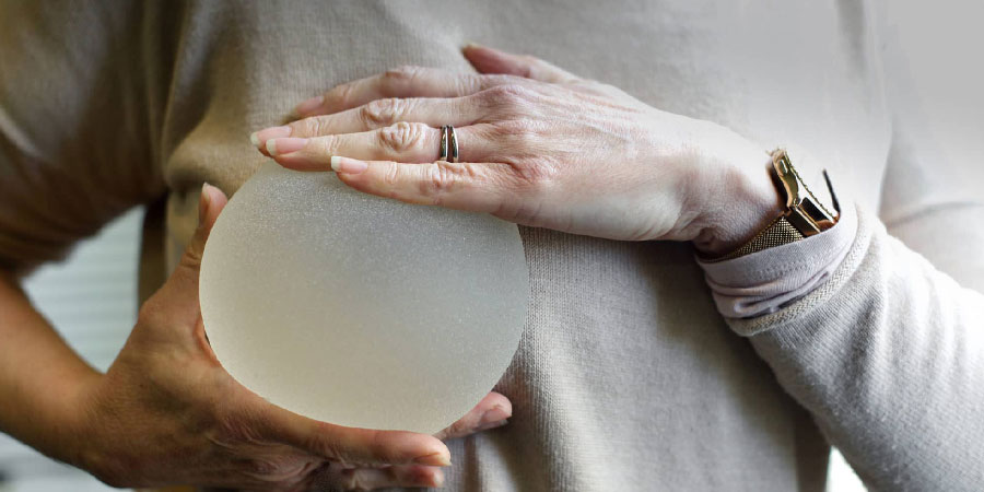 FREQUENTLY ASKED QUESTIONS ABOUT BREAST IMPLANT